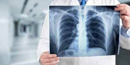 Dread Disease -Schwere Krankheiten Versicherung